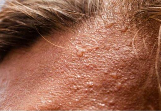 Đổ mồ hôi đầu do chứng tăng tiết mồ hôi - Hyperhidrosis